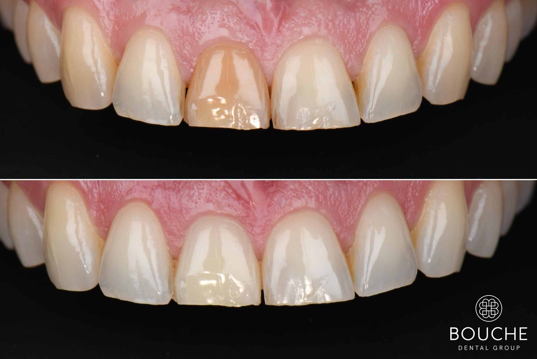 dente castanho