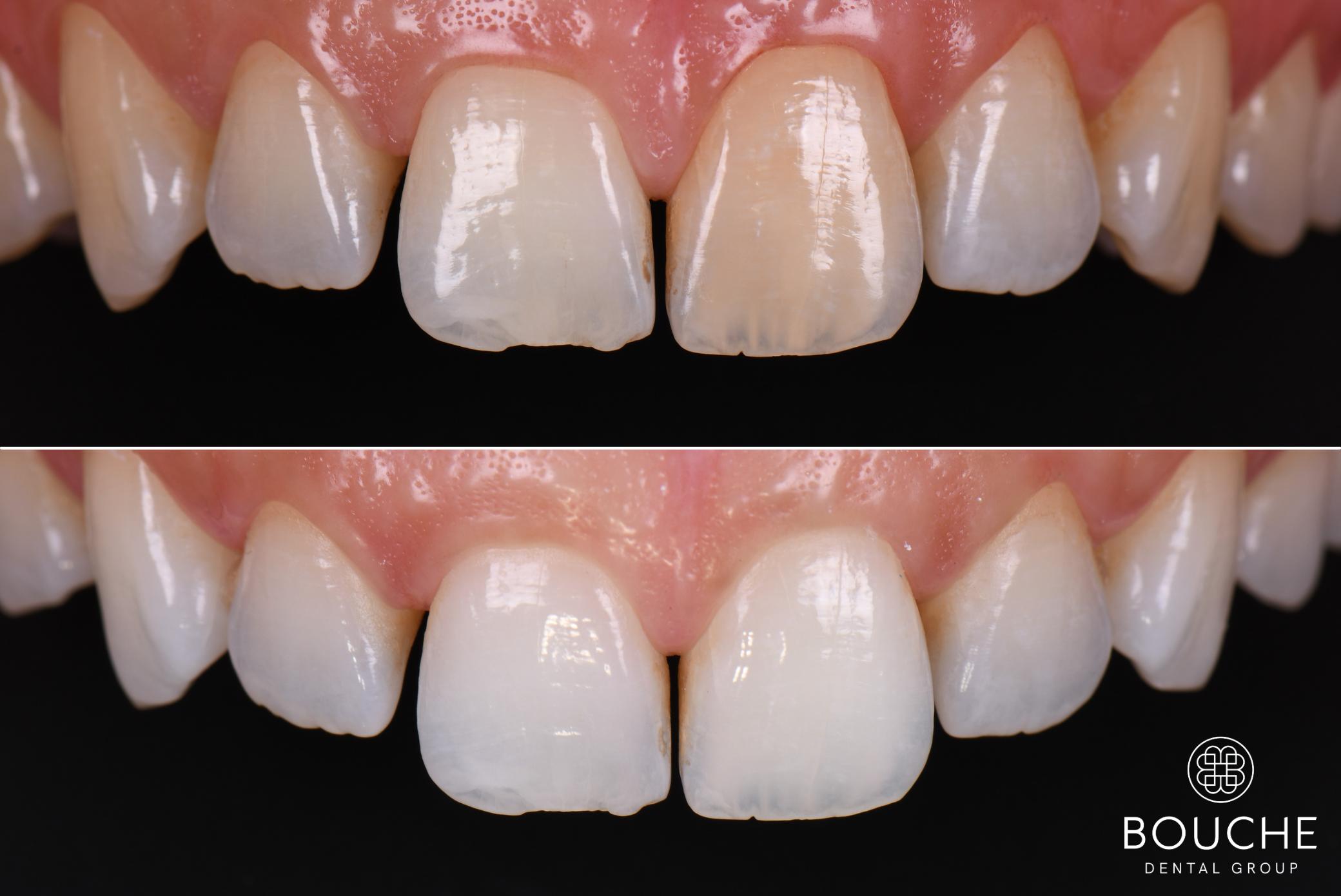 dentes brancos luxemburgo