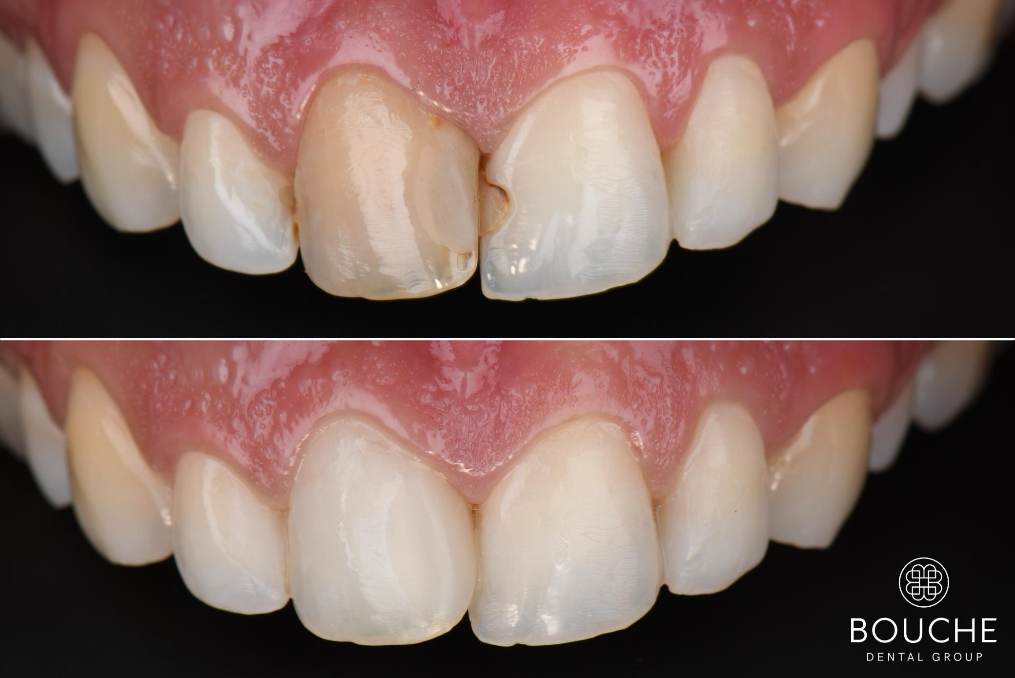 cor dos dentes bouche dental group