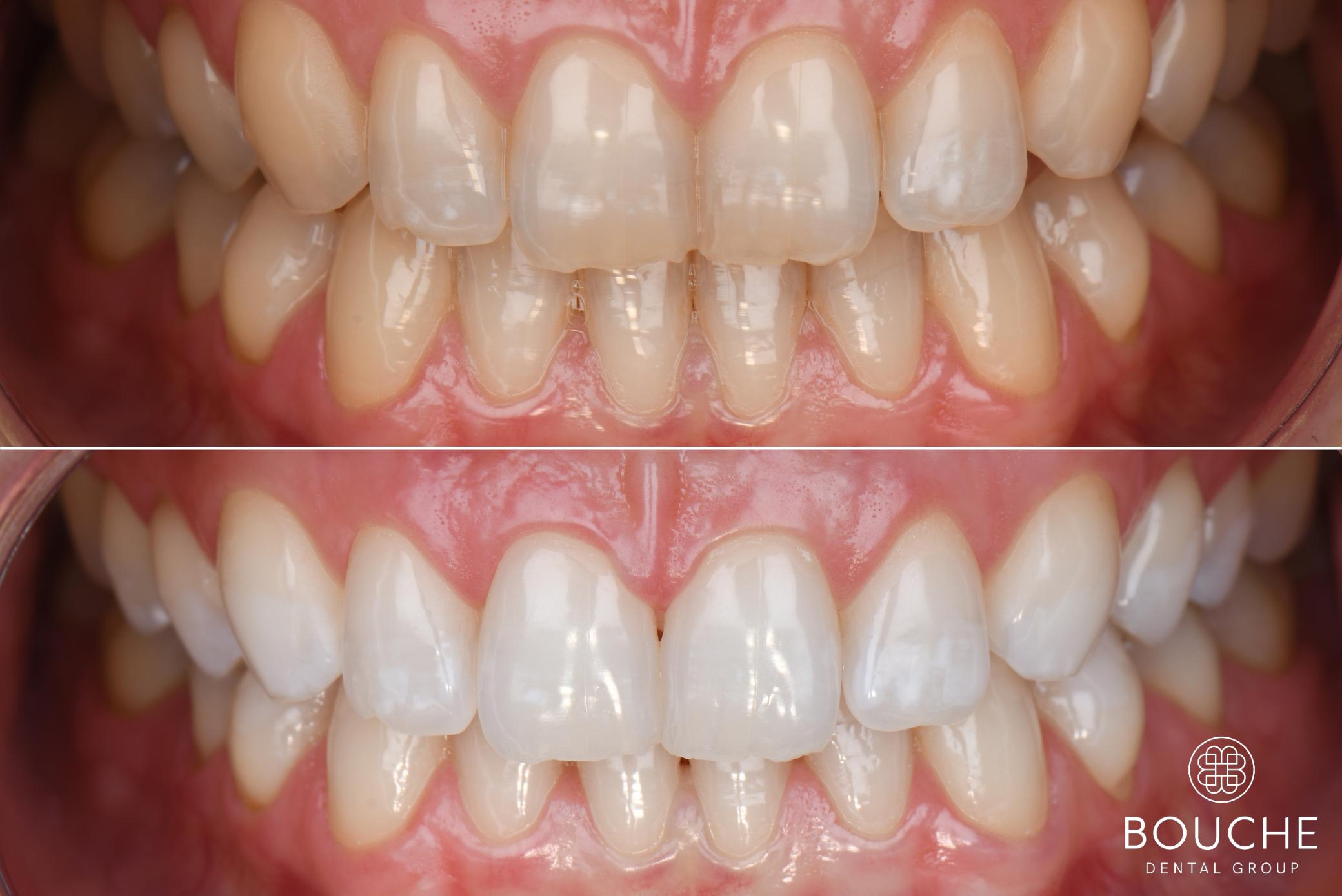 dentes brancos bouche dental group