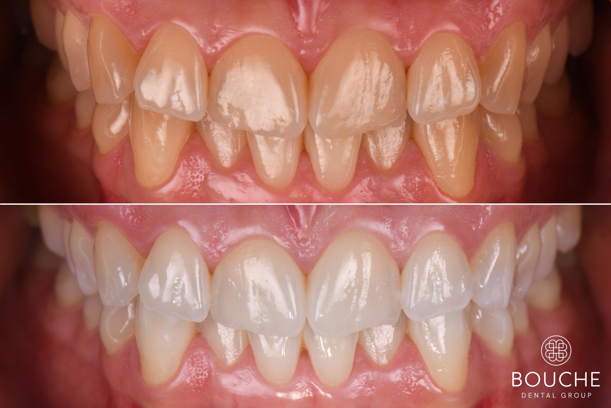 branqueamento bouche dental group