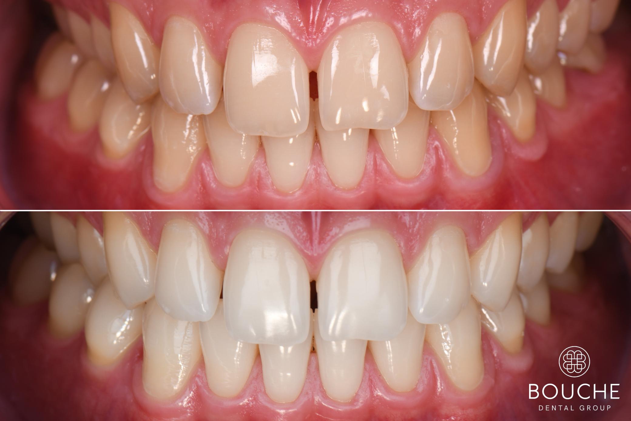 branqueamento dentário bouche dental group