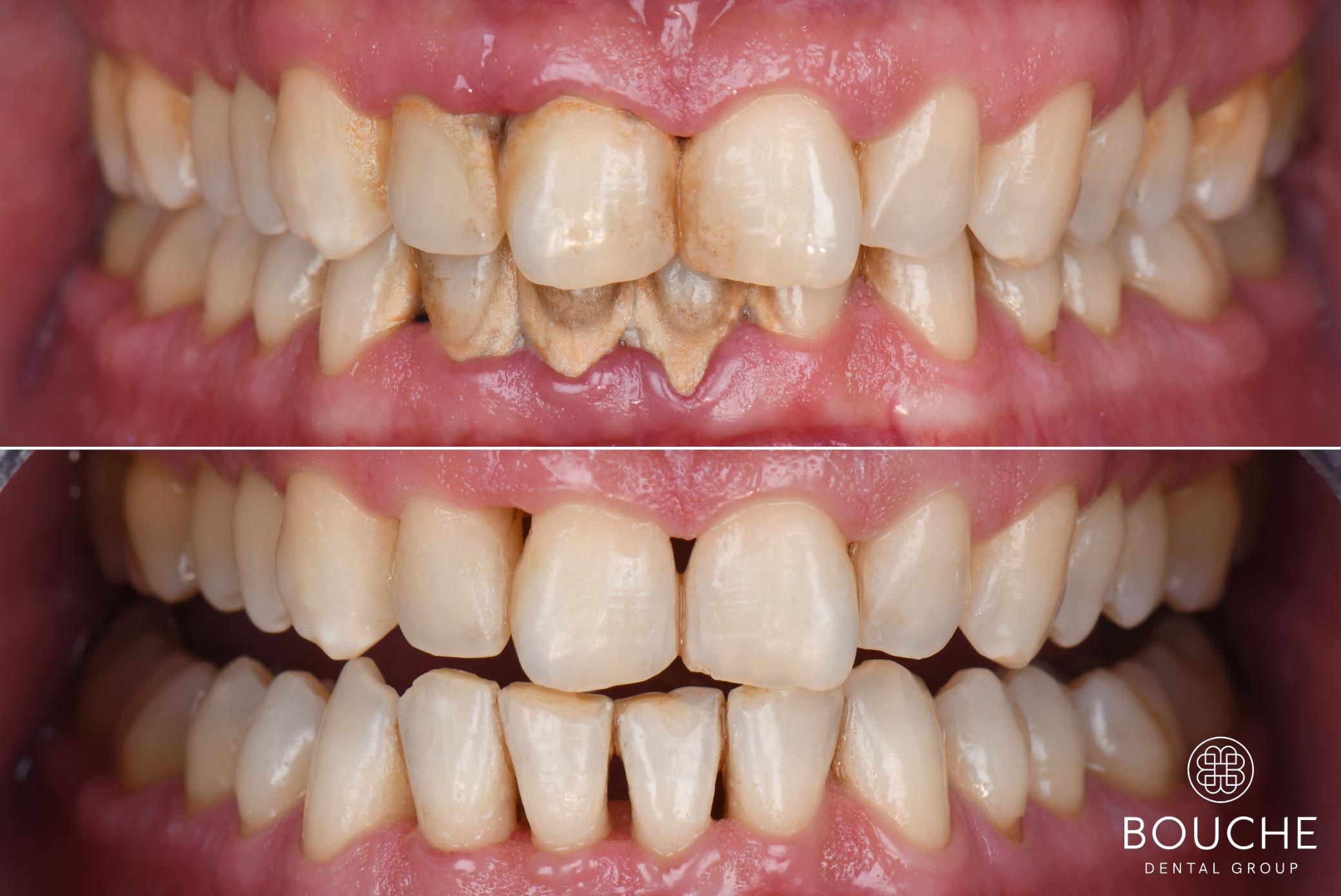 remoção de placa bacteriana bouche dental group