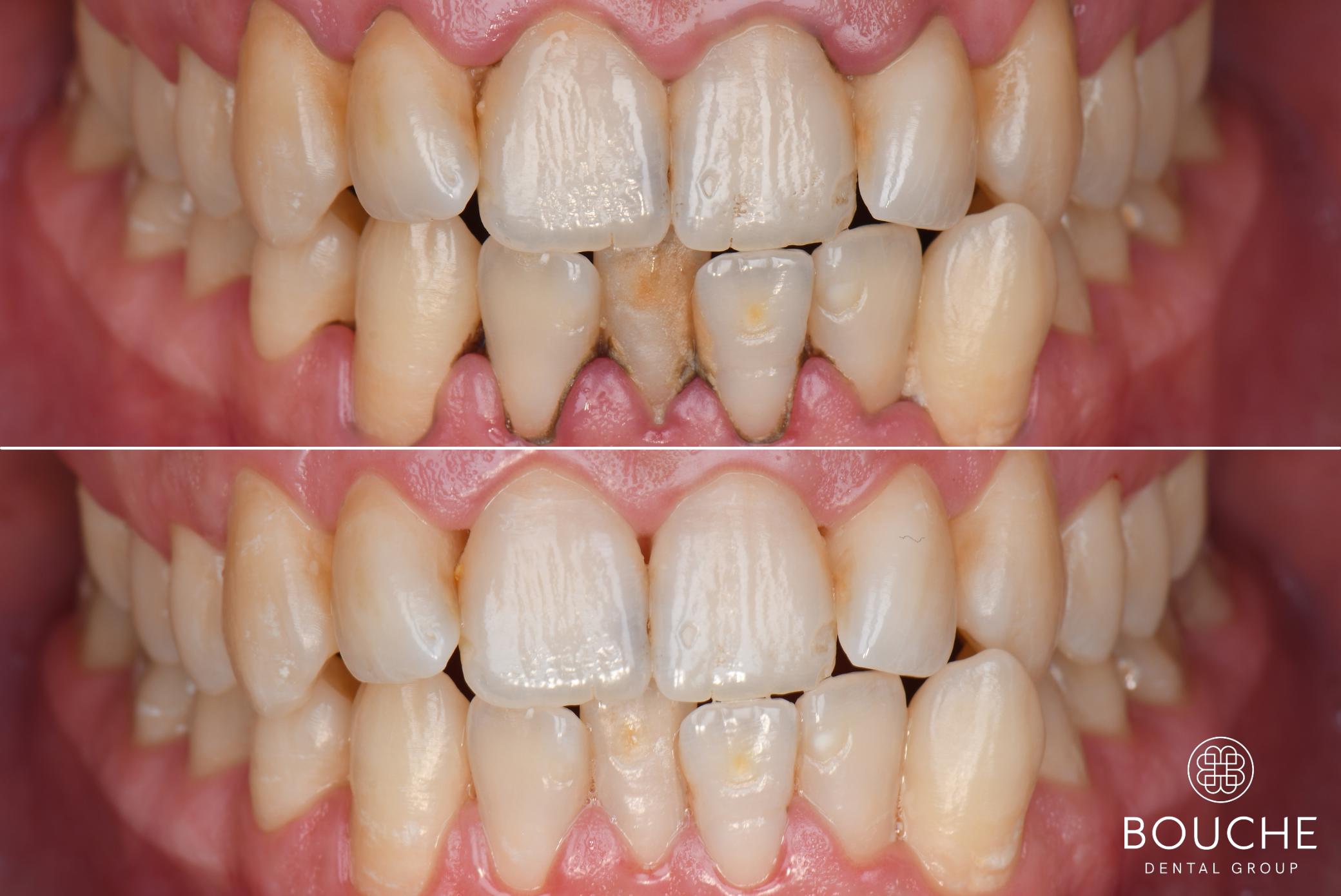 higiene oral bouche dental group