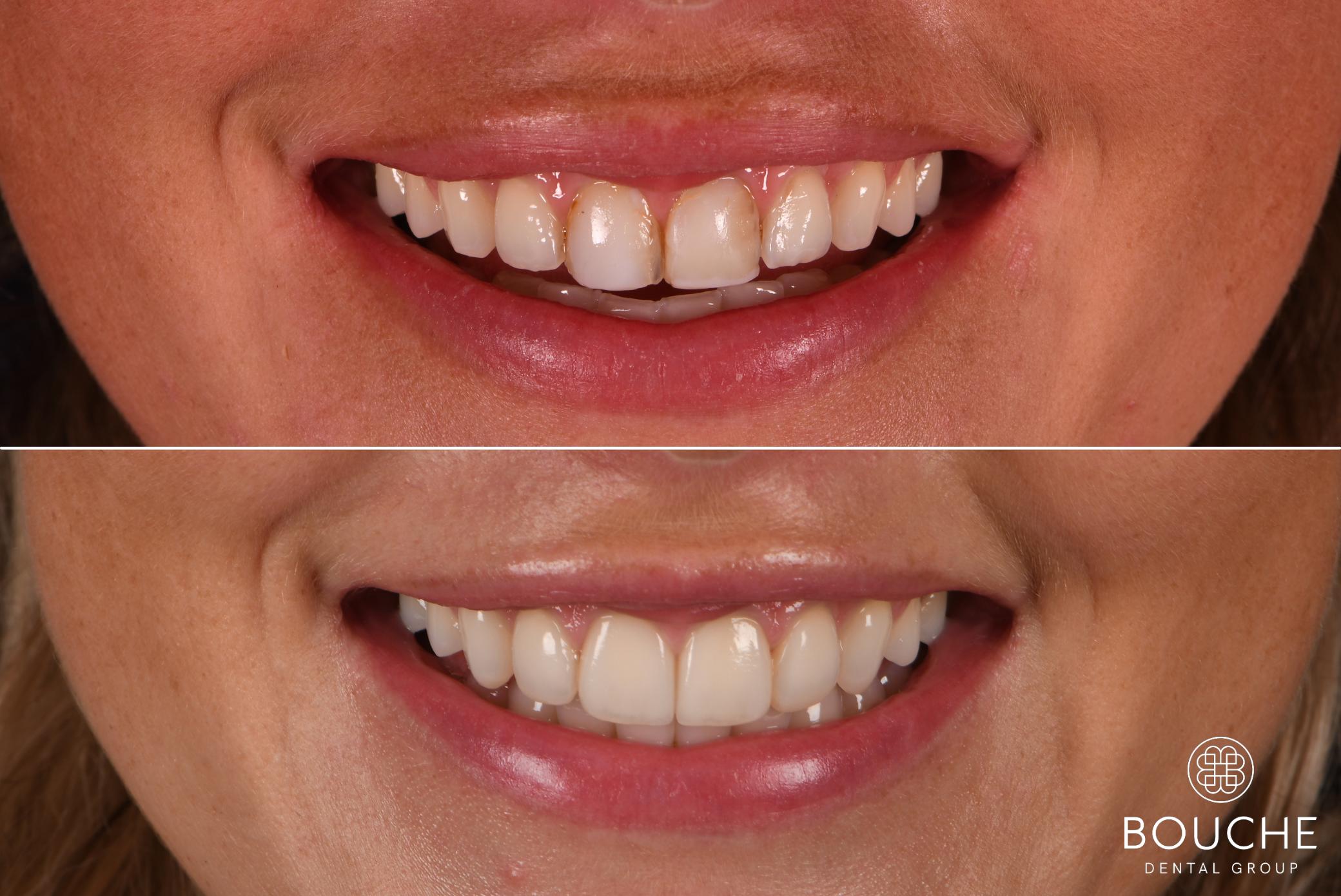 Facetas Dentárias bouche dental group