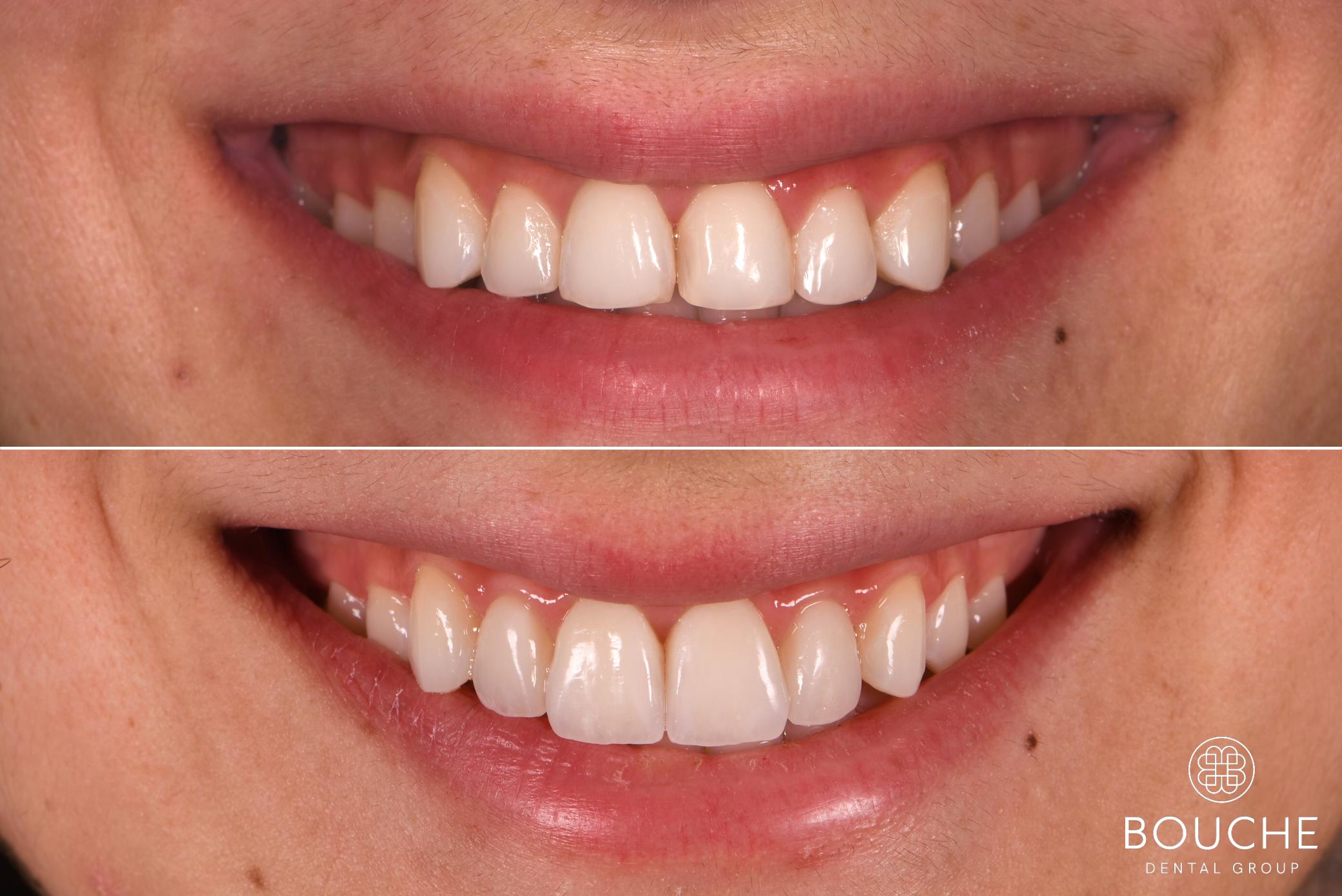 tratamento de facetas dentárias