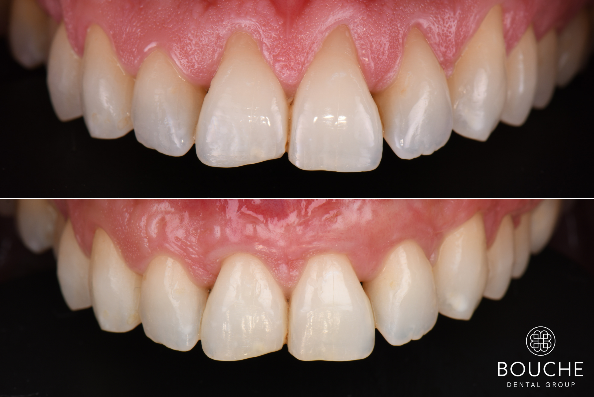 caso clínico periodontologia Luxemburgo