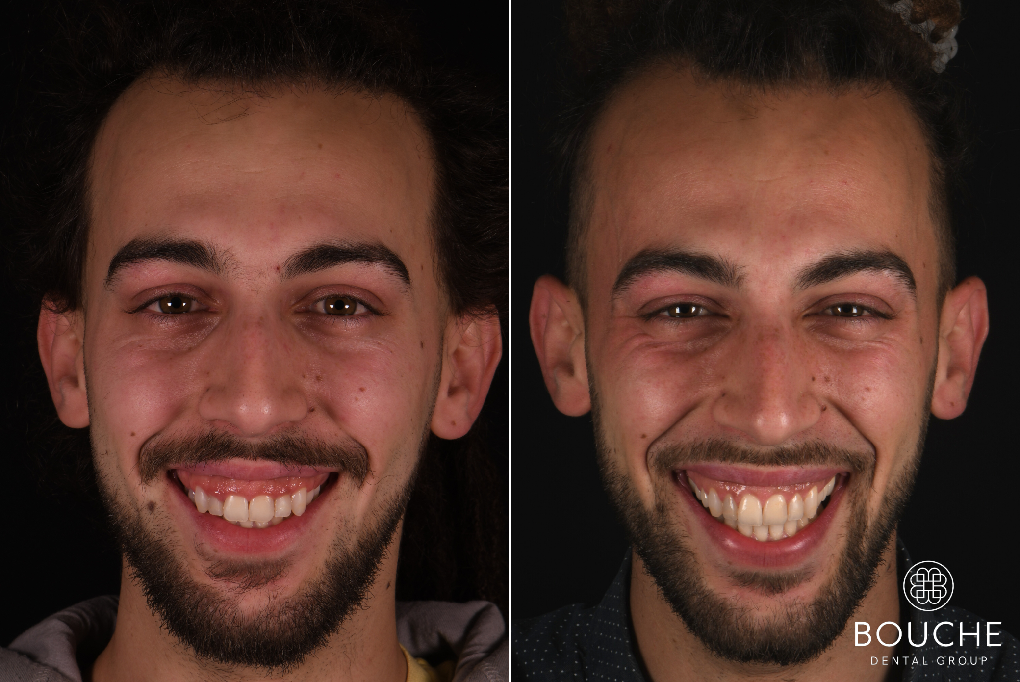 caso clínico periodontologia