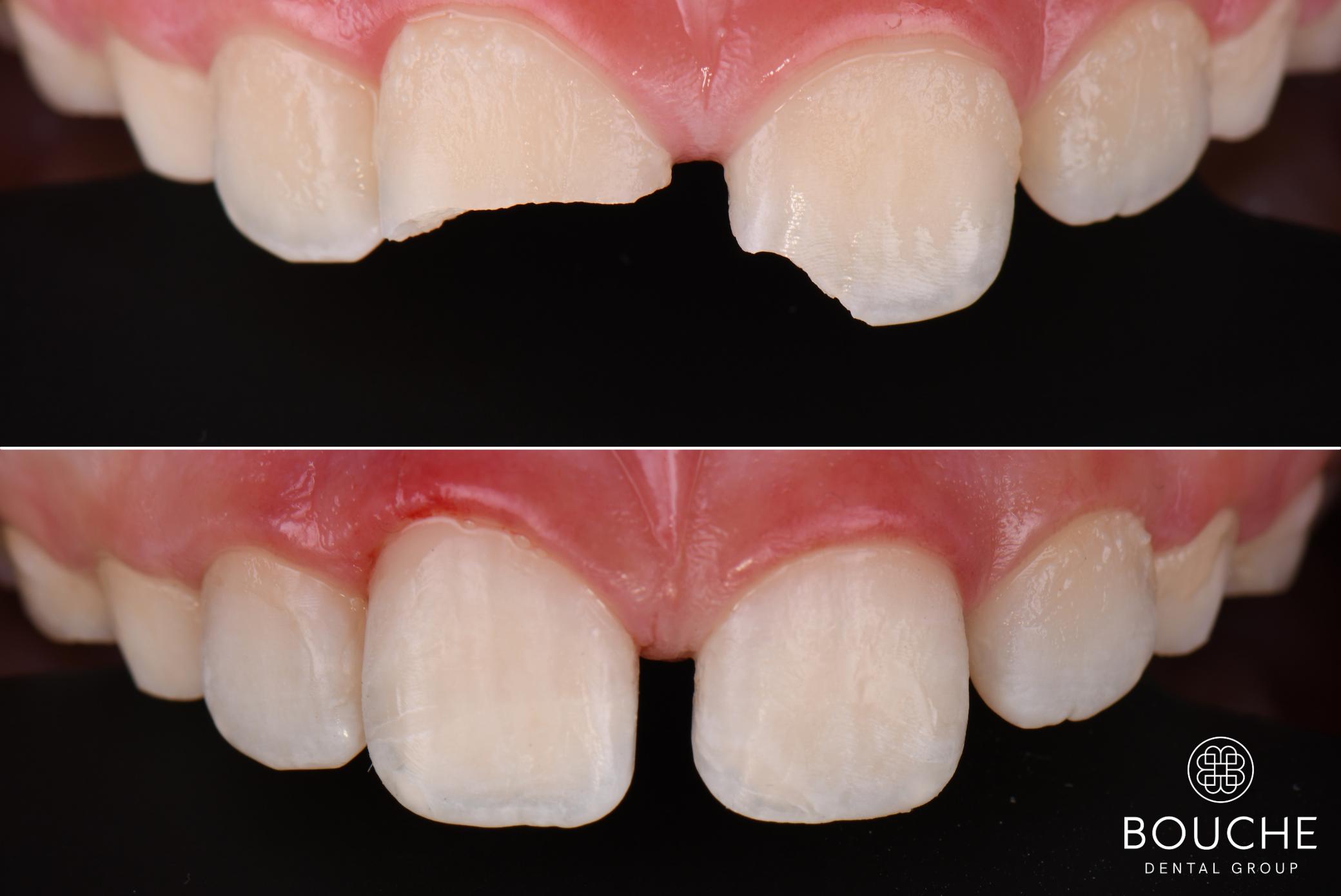 caso clínico traumatismo dentário Luxemburgo