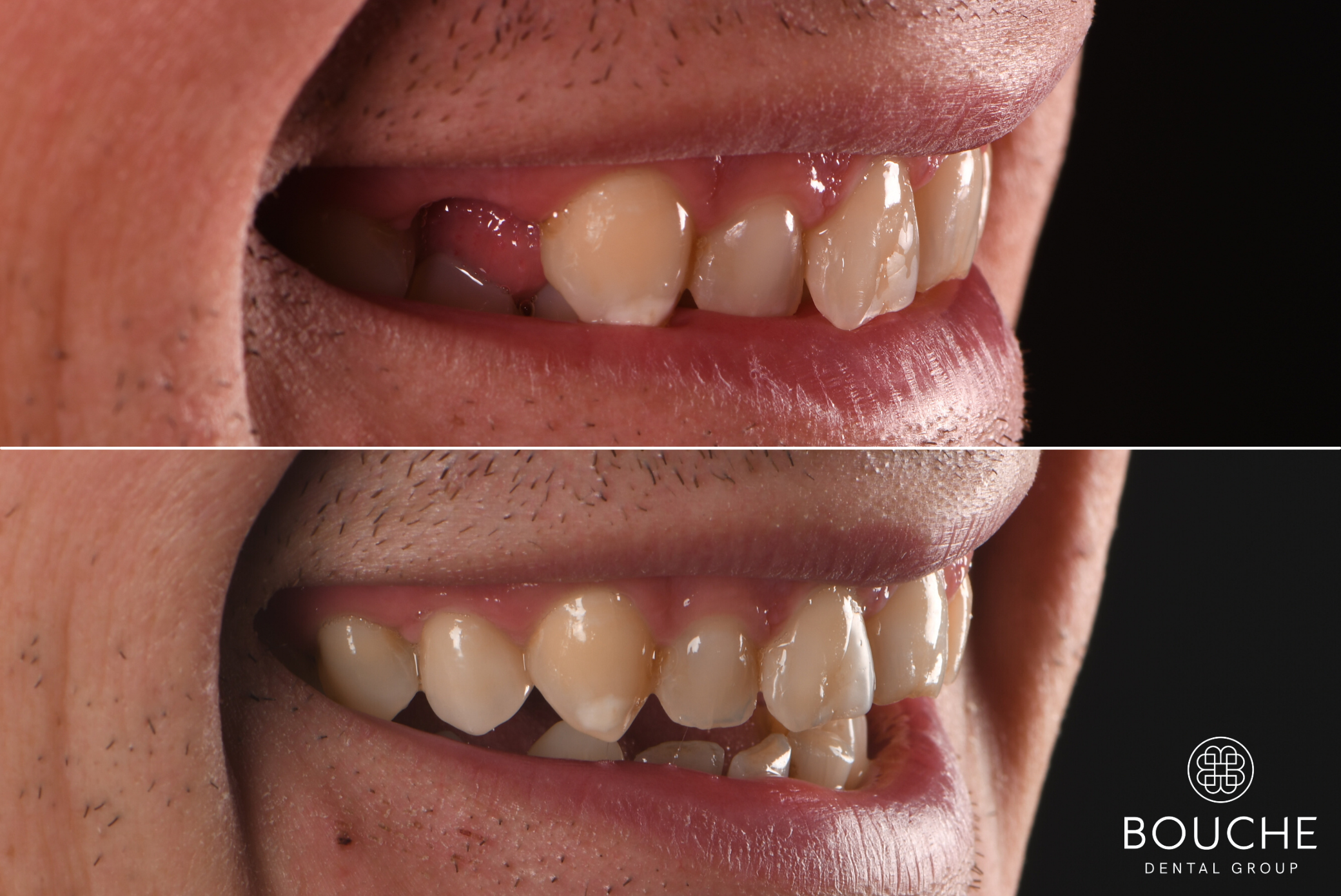 coroa dentária Luxemburgo