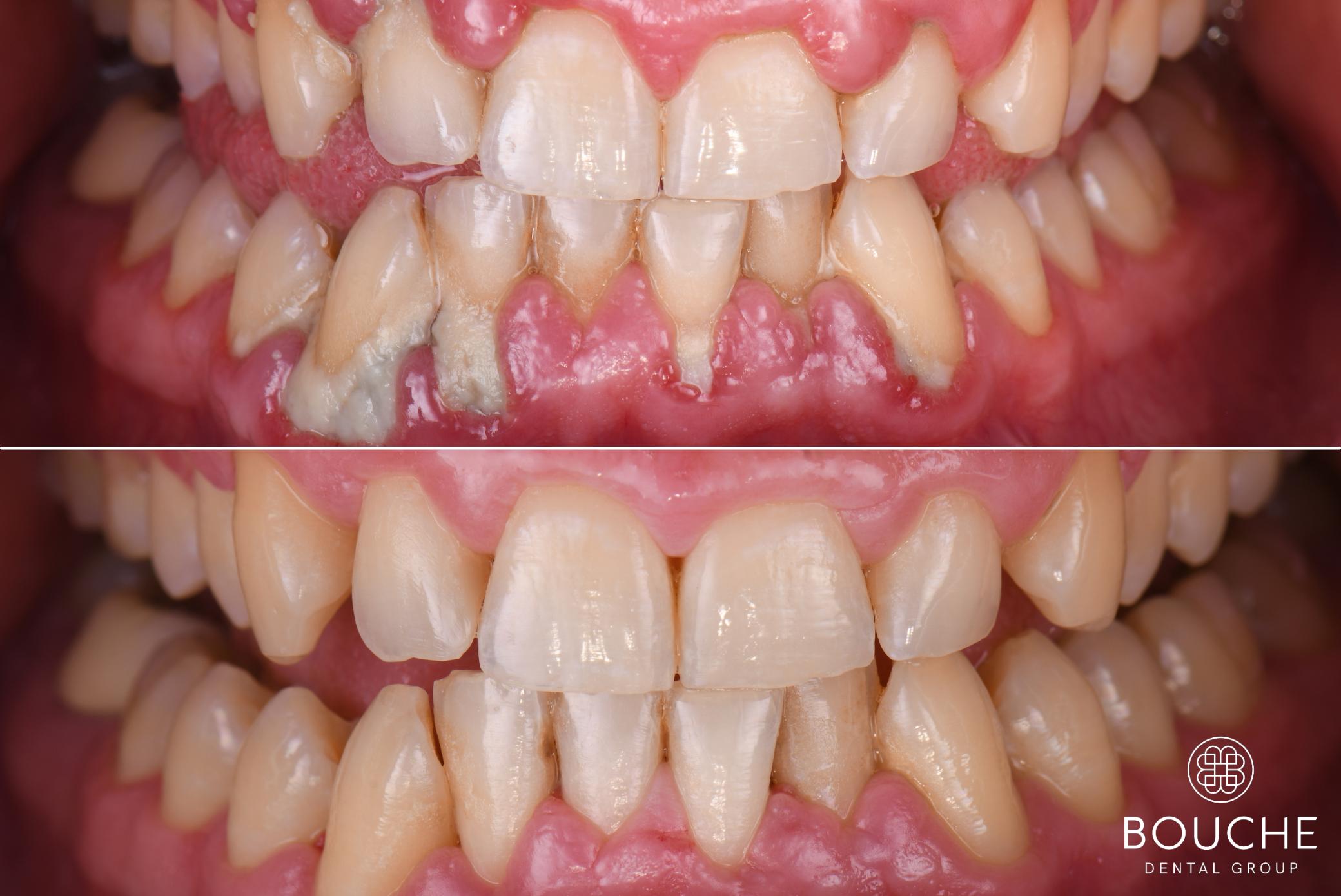 higiene oral no Luxemburgo