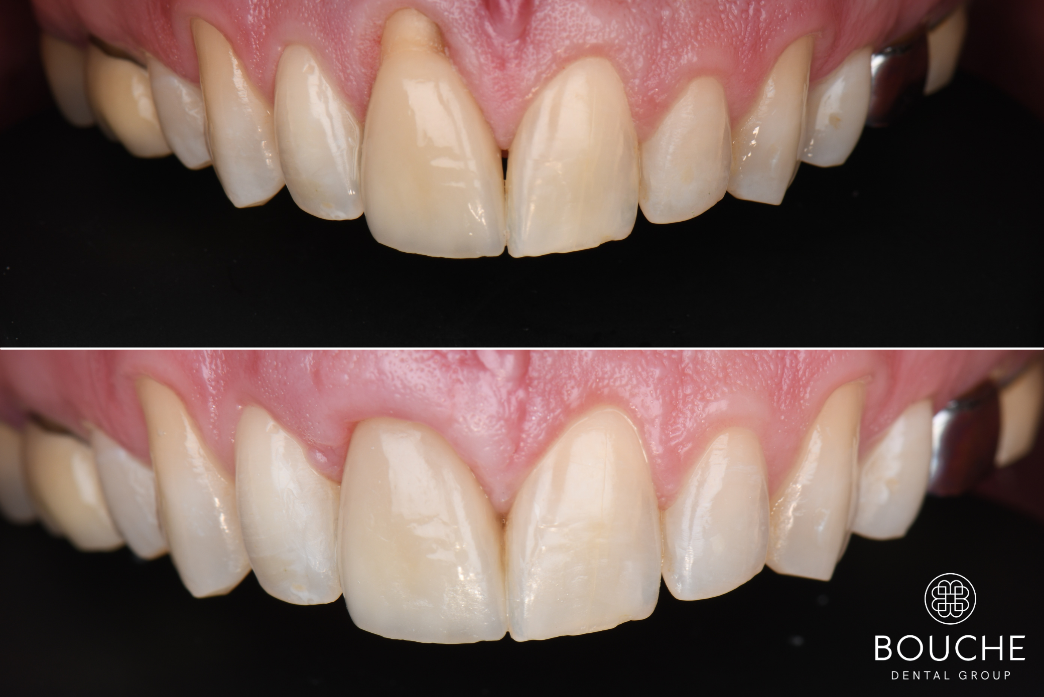 tratamento de periodontologia Luxemburgo